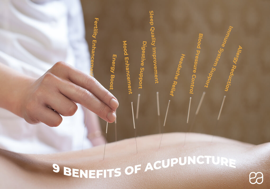 infographic explaining benefits of acupuncture with acupuncture needles